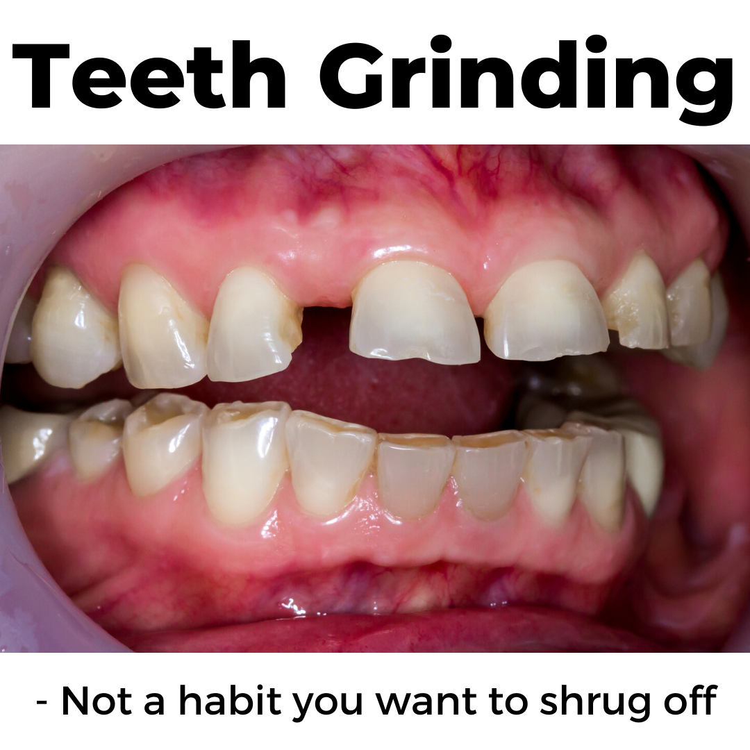 Grinding Your Teeth - Dr. Wenrick's Blog